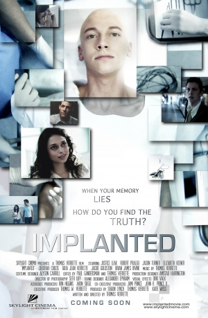 Implanted 2159x3300